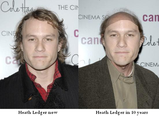 Is Heath Ledger Going Bald