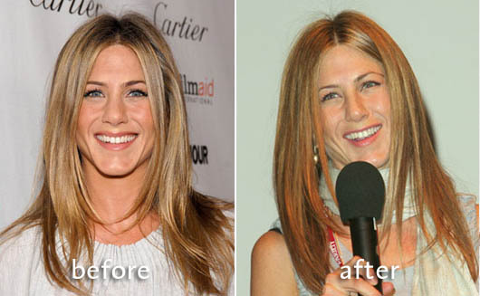 jennifer-aniston-nose-job-poll-2-6-07.jpg