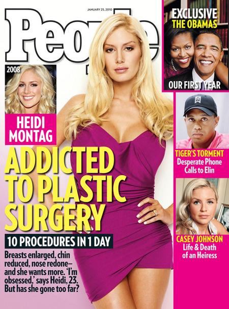 heidi montag surgery people. Heidi Montag plastic surgery