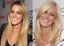 Heidi Montag Pre and Post Plastic Surgery