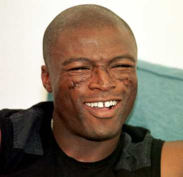 Seal Has Lupus