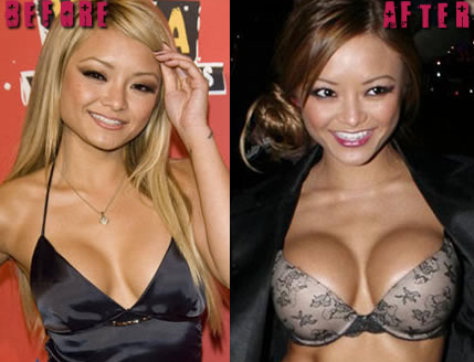 5 Celebrity Boob Jobs to Inspire You