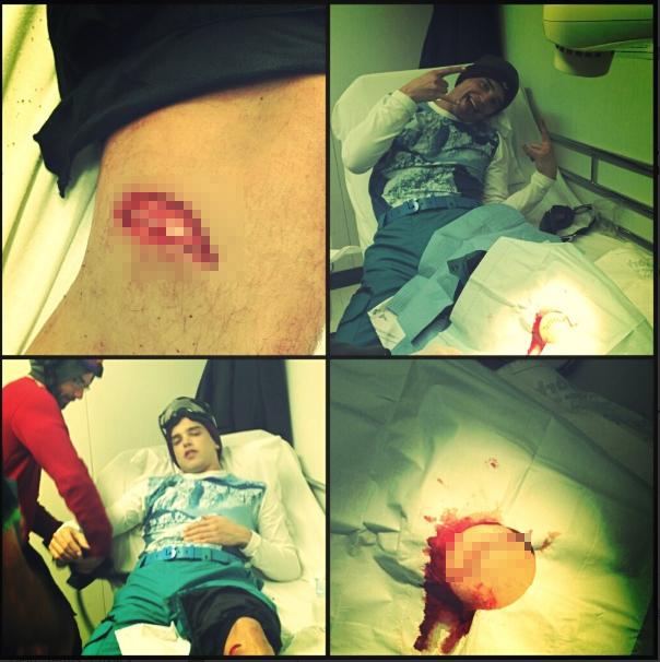 paris_boyfriend_wound