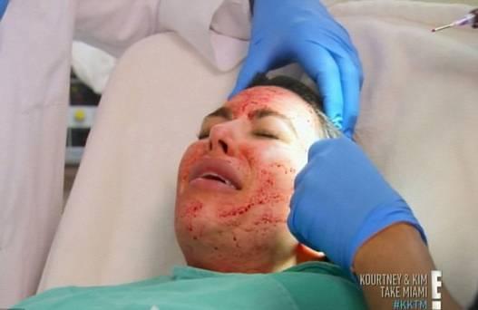 kim_kardashian_acupuncture_needles