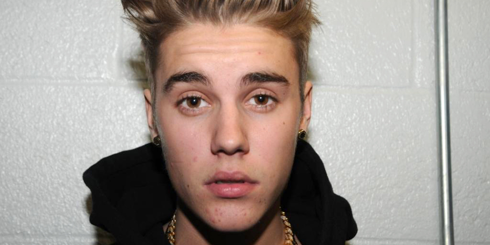 Not Another Justin Bieber Boo-Boo?!