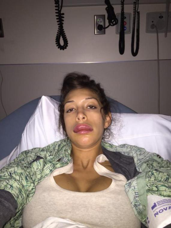 Farrah Abraham lip surgery fail